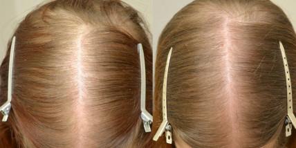 Hair Drugs - средство для ухода за волосами